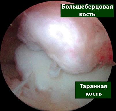 экзостоз большеберовой кости