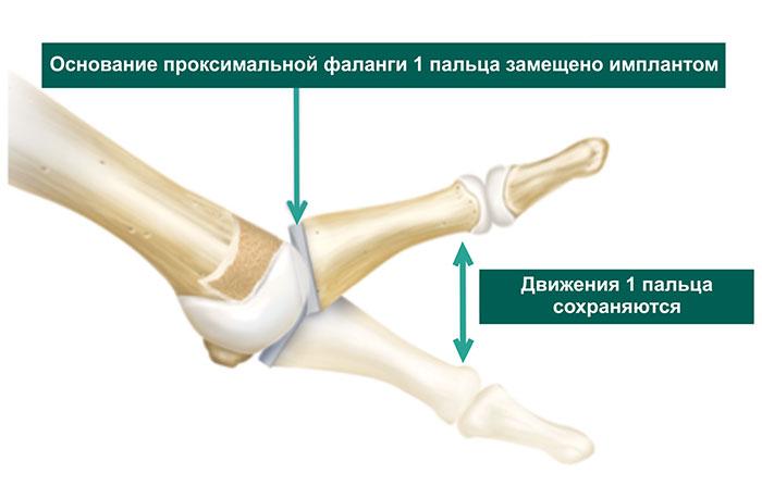 гемиартропластика 1-го ПФС