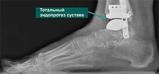 посттравматический остеоартроз голеностопного сустава