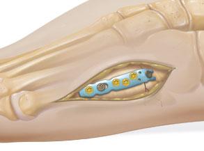 анатомичная пластина Arthrex
