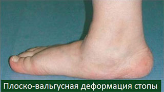 Ход операции артродеза костей стопы