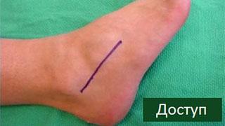 операция артродеза на стопе