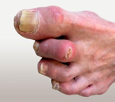 язва пальцев ноги