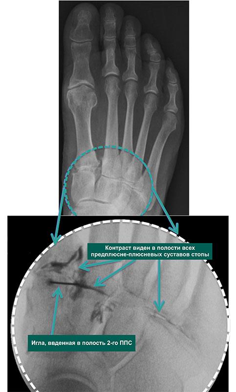 инъекции в суставы стопы