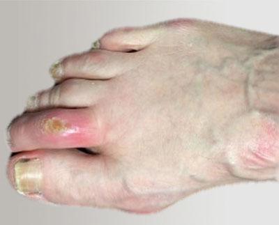 Инфицированная язва пальца