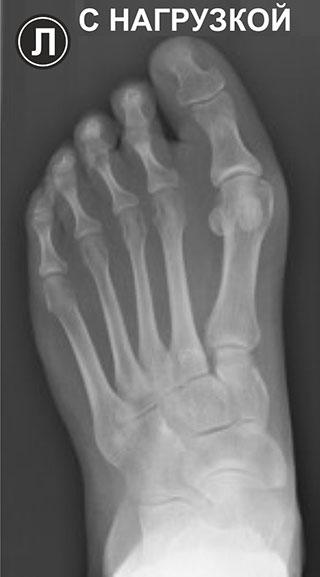 рентгенография стопы
