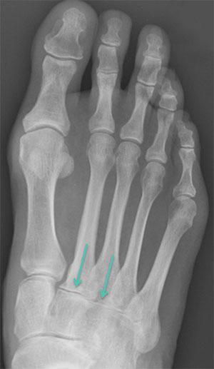 Рентгенограмма стопы до артродеза
