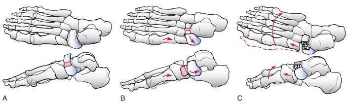 лассификация переломов тела