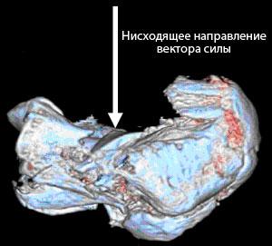 трехмерная компьютерная реконструкция перелома пяточной кости