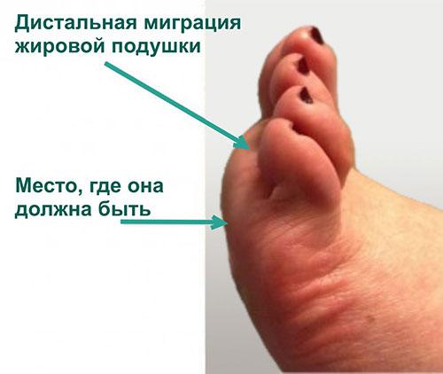 патологическое смещение подошвенной жировой подушки