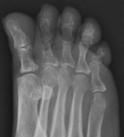 коррекция когтеобразной деформации пальцев