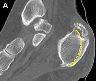 задняя граница пяточной кости