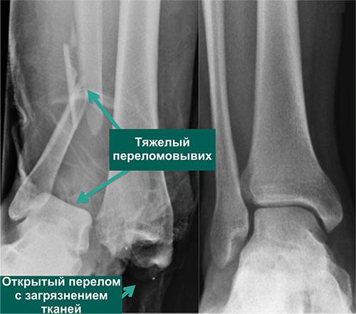 открытый переломо-вывих голеностопного сустава