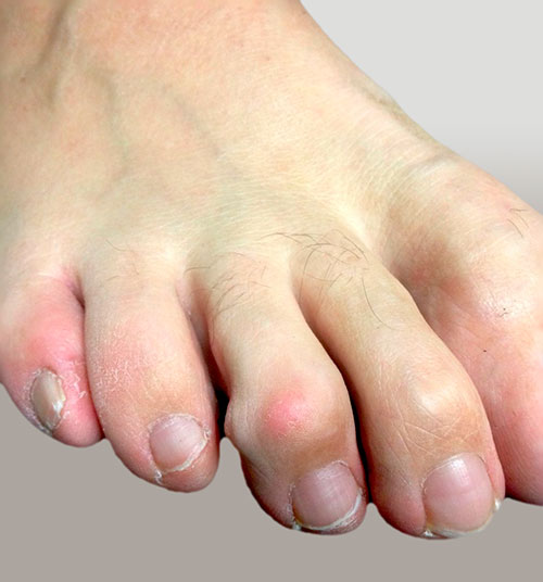 молоточкообразная деформация 2 и 3 пальца