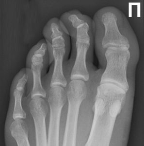 Молоточкообразная деформация 2 пальца