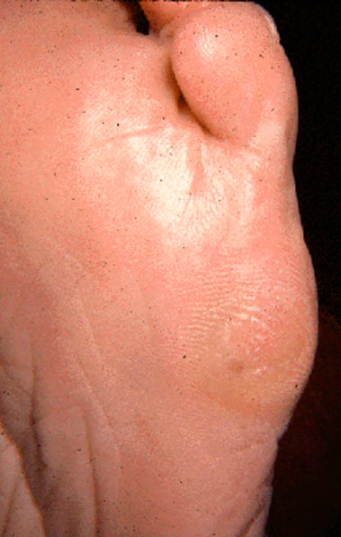 мозоли на пятом пальце стопы