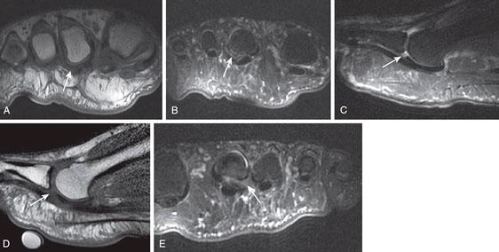 МРТ разрыв подошвенной пластинки