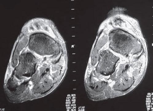 МРТ разыв сухожилия