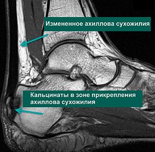 МРТ тендопатии ахиллова сухожилия