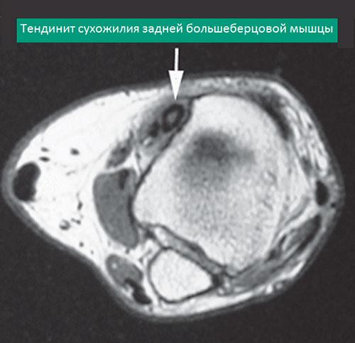 МРТ тендинит сухожилия задней большеберцовой мышцы