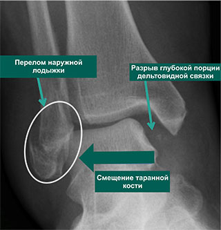 Рентгенограмма нормального голеностопf