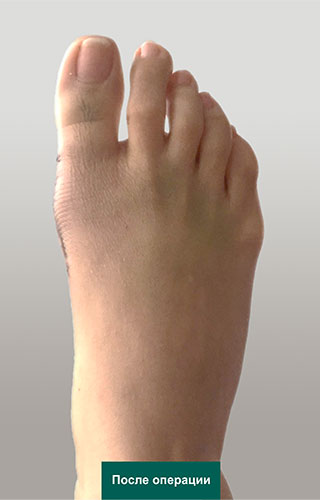 Фото стопы через 2 недели после коррекции вальгусной деформации