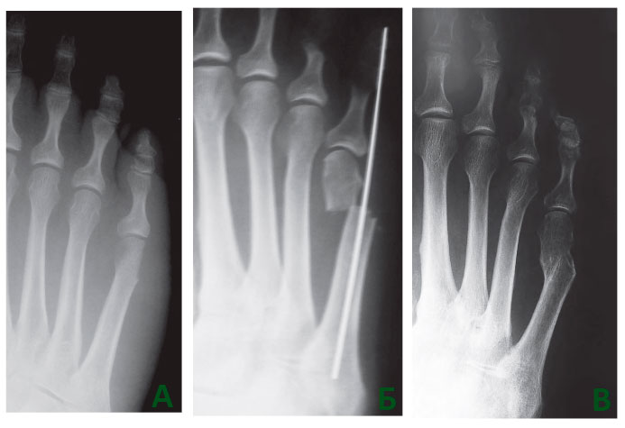 операция на косточках стопы