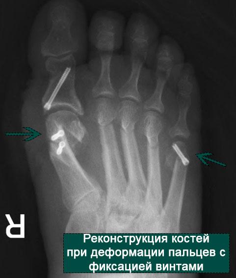 операция при искривлении пятого пальца