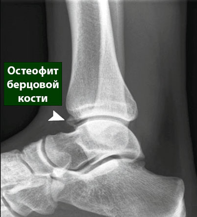 остеофит берцовой кости