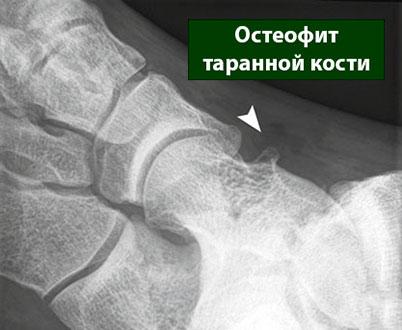 остеофит таранной кости