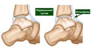 остеофиты голеностопа