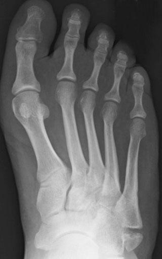 5 плюсневая кость до операции