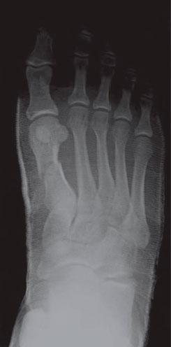 остеосинтез плюсневой кости