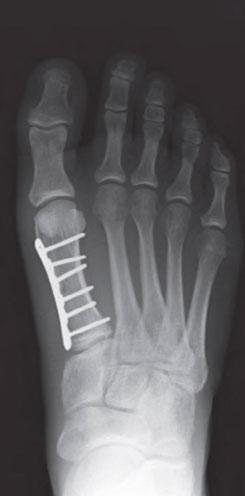 остеосинтез плюсневой кости пальца