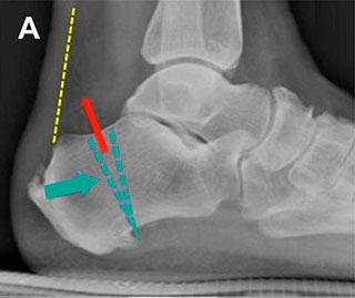 остеотомия пяточной кости по Зáдеку