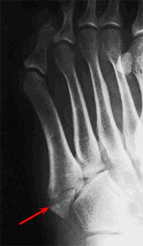 Рентген отрывного перелома