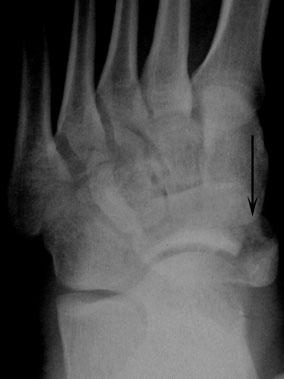 перелом бугристости ладьевидной кости