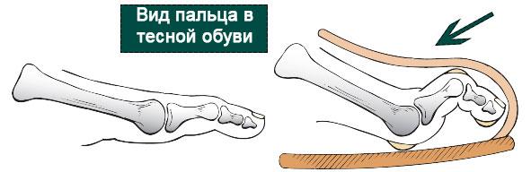 палец в тесной обуви