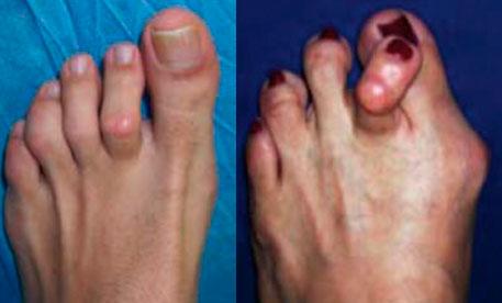перекрещивание пальцев стопы