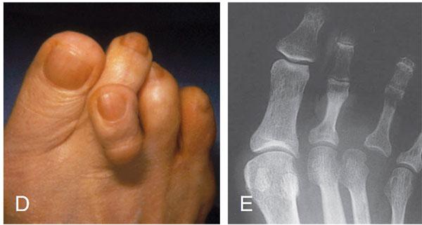 перекрещивающиеся пальцы стопы
