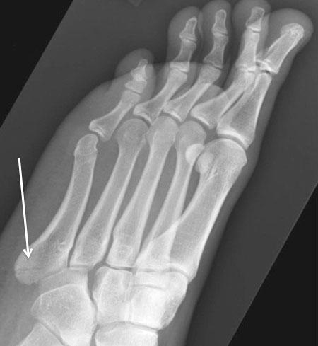 Перелом пятой плюсневой кости: симптомы, лечение, осложнения