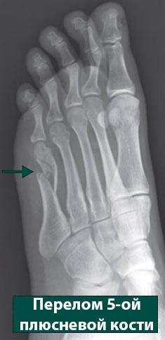 перелом 5-ой плюсневой кости