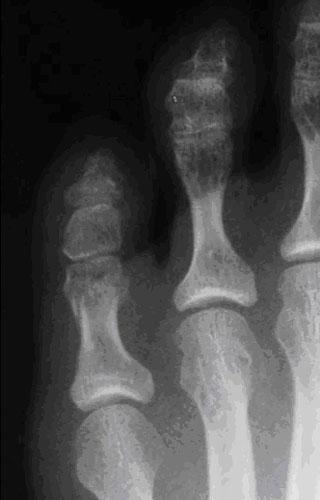 Рентген после репозиции перелома
