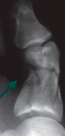 перелом фаланга пальца ноги