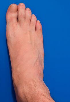 анатомия переднего отдела ноги