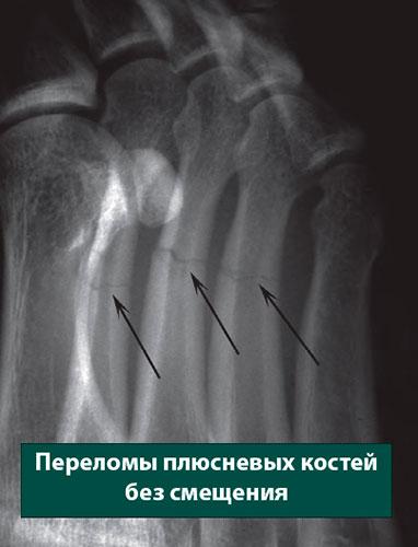 переломы плюсневых костей без смещения
