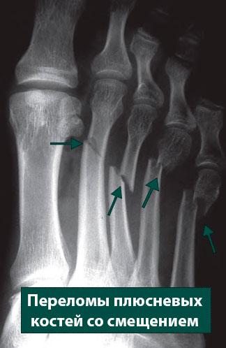 перелом плюсневых костей со смещением