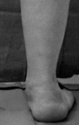 фото плоско-вальгусной стопы