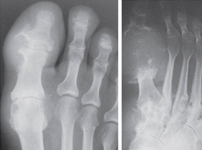подагрический артрит первого пальца