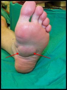 фиброма подошвенной поверхности стопы